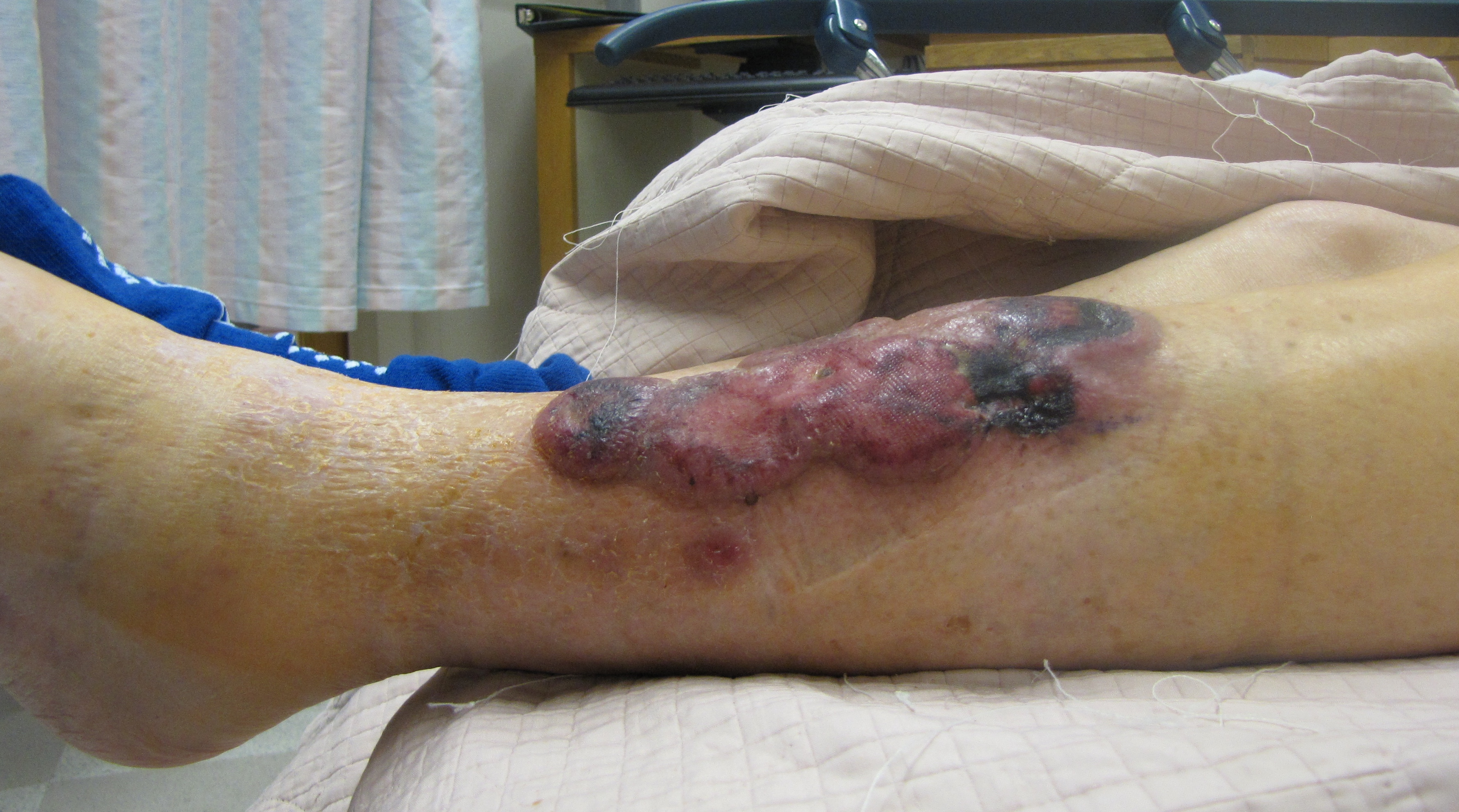 Copy of Copy of Unusual-Skin-Rash_Image2_Lehmann.jpg