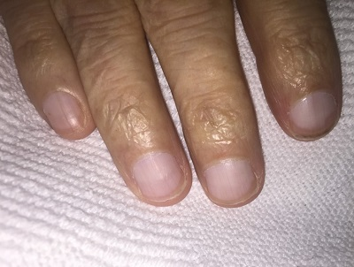Fingernail Findings In Liver Disease Sgim Org
