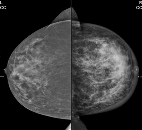 Breast Erythema and Tenderness | sgim org