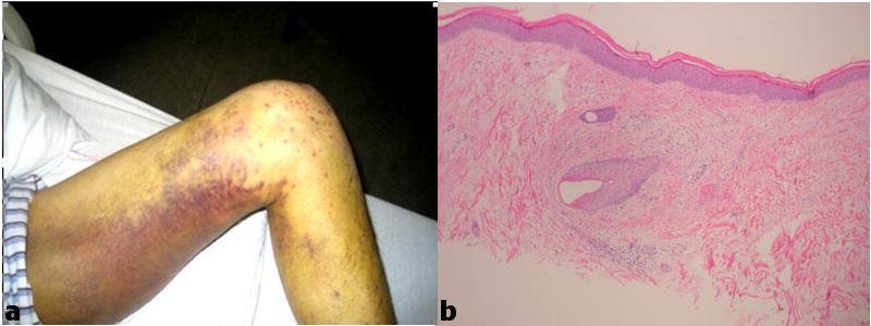 Hematoma and Petechiae | sgim org